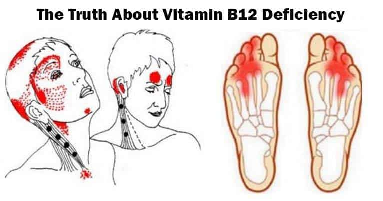 Give Me 10 Minutes Ill Give You The Truth About Vitamin B12 Deficiency