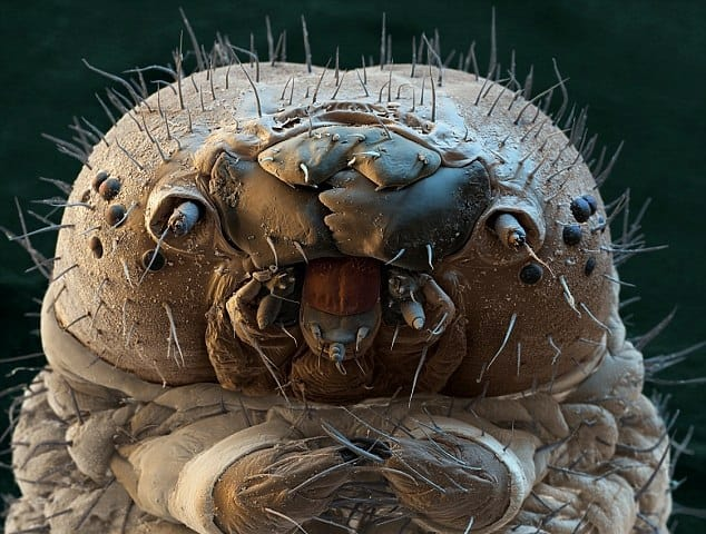 Are You Lonely? Don't Be. This Is A Type Of Mite That Is Living On Your Face Right Now