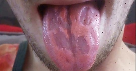 Teacher Claims His Tongue Was 'EATEN AWAY' By Energy Drinks 3