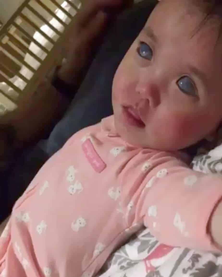Little Girl With Rare Condition Causing 'Silver' Eyes Has