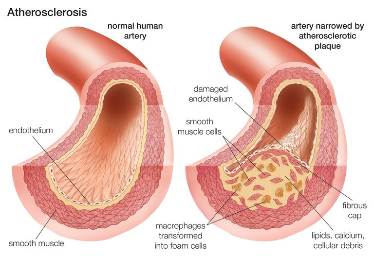 atherosclerotic
