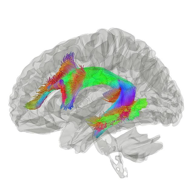 Tractography of arcuate fasciculus via Inverse